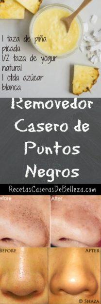 Removedor Casero de Puntos Negros