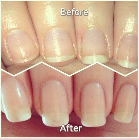 antes y despues remojo de uñas