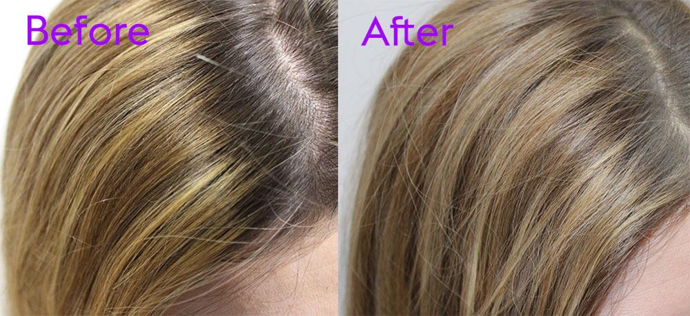 antes y despues shampoo seco
