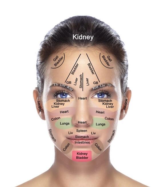 mapa del acne