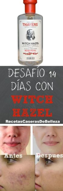 con witch hazel