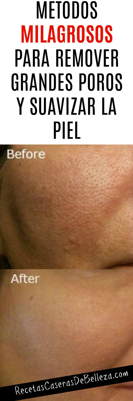 Hoy te mostraremos formas de remover los grandes poros o minimizarlos (dependiendo del tamaño de este). #grandesporos #recetascaserasdebelleza