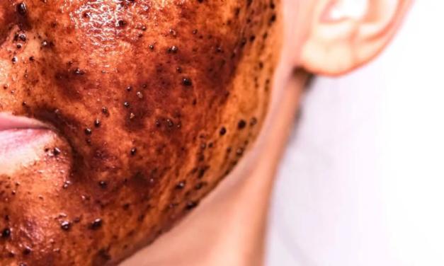 Mascarilla Facial Casera Con Cocoa Y Aguacate