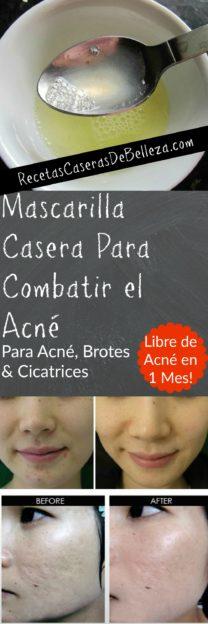 Mascarilla Casera Para Combatir el Acné