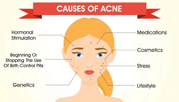 Causas del Acné: Porque Lo Obtienes Y Como Puedes Prevenirlo