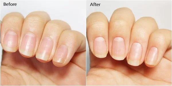 antes y despues crema de cuticulas