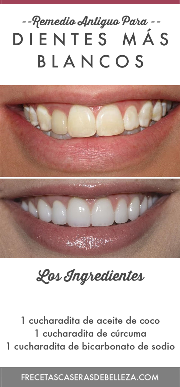 Este antiguo remedio para el blanqueamiento de los dientes ayudará a reconstruir el esmalte de los dientes al mismo tiempo que los hace tan brillantes como antes. #blanqueamientodedientes #recetascaserasdebelleza