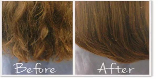 antes y despues tratamiento capilar
