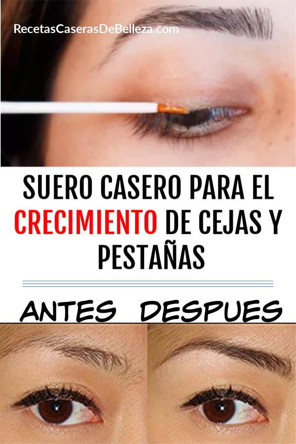 SUERO CASERO PARA EL CRECIMIENTO DE CEJAS