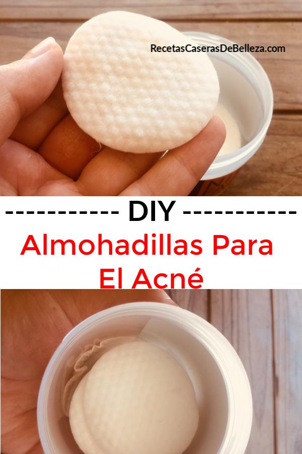 almohadillas DIY para el acné