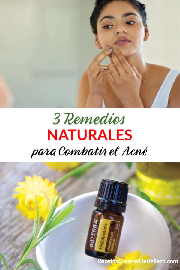 Remedios Naturales para Combatir el Acné