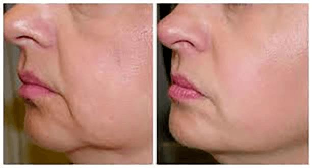 antes y despues piel flacida